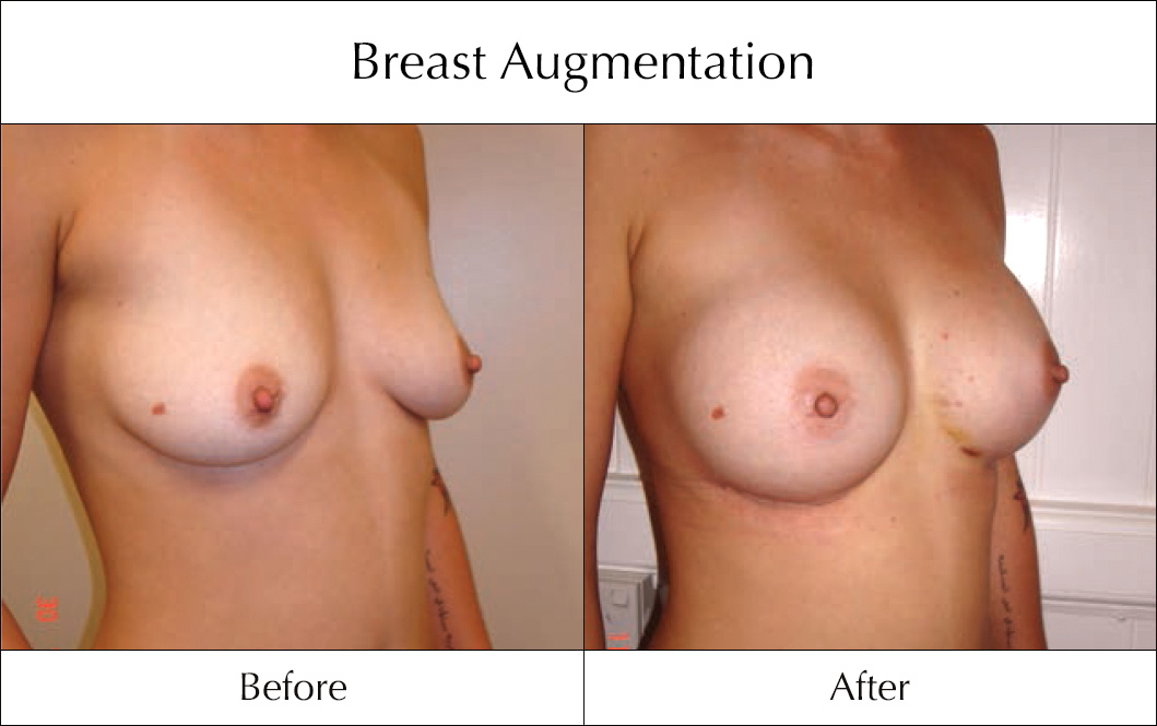 breast-enlargement-mammoplasty-before-and-after-2