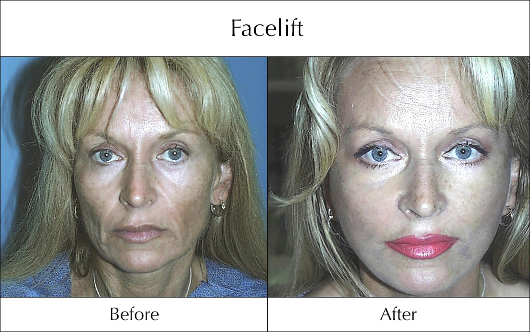facelift-before-and-after-7