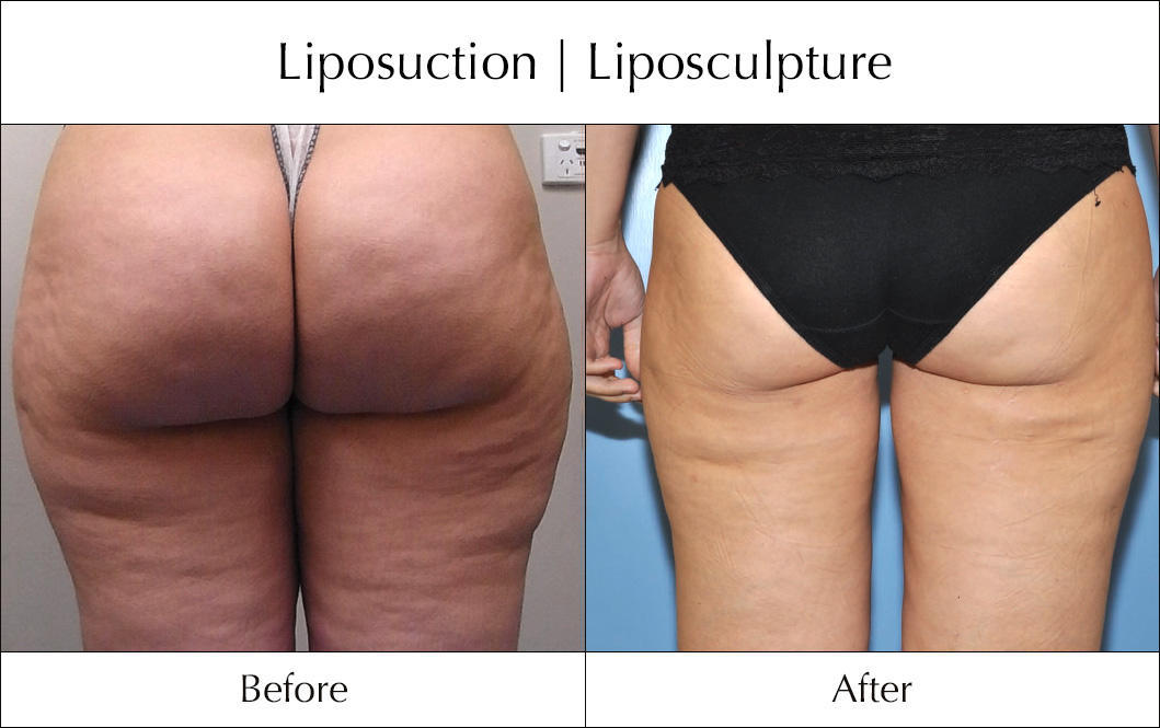 liposuction-before-and-after-9