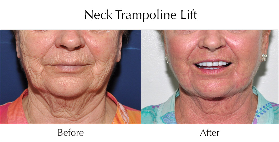 neck-trampoline-lift-before-and-after-2