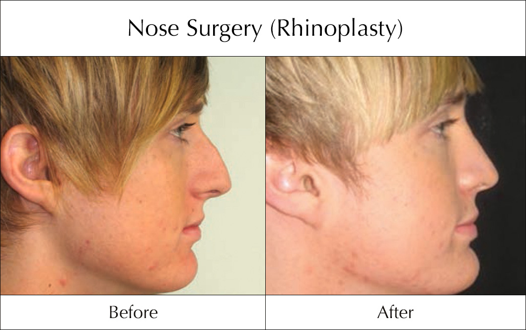 nose-surgery-rhinoplasty-before-and-after-2