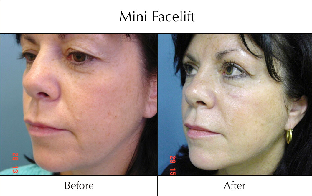 s-lift-mini-facelift-before-and-after-4