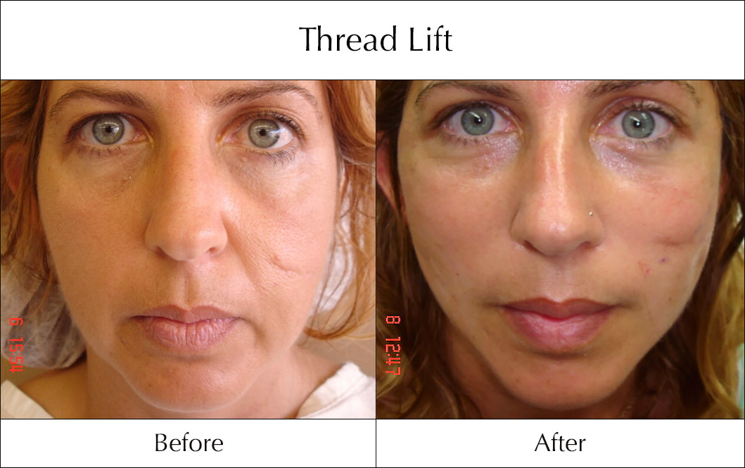 thread-lift-before-and-after-4