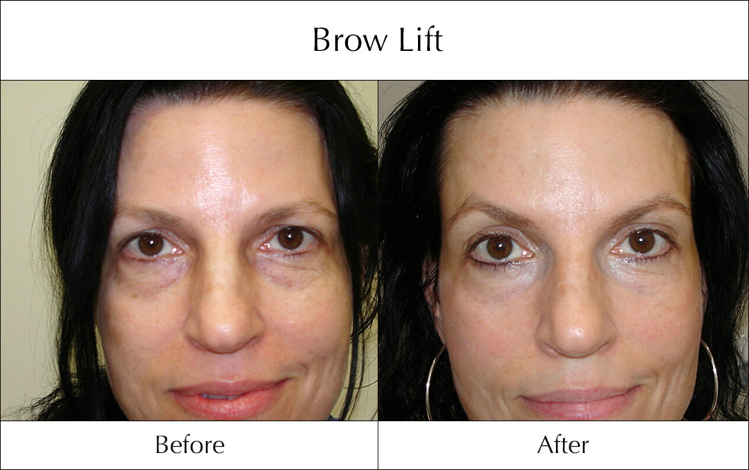 brow-lift-before-and-after-1