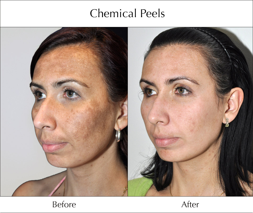 chemical-peels-before-and-after-1