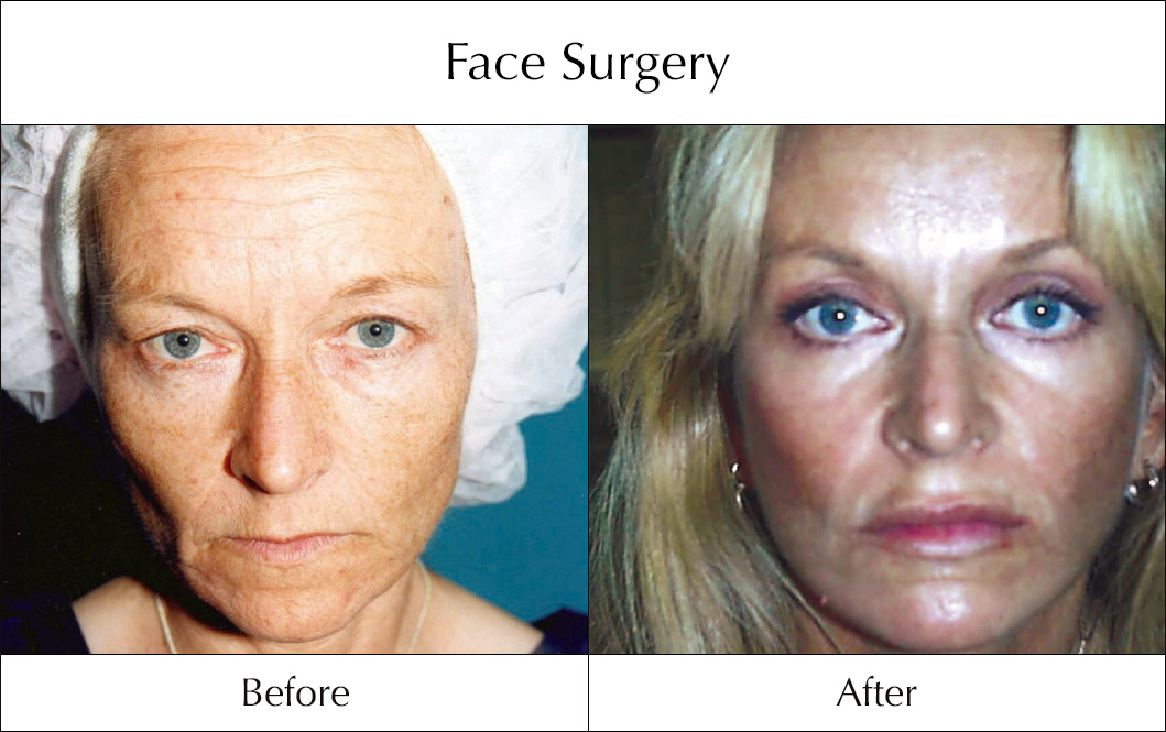 ace-surgery-before-and-after-5