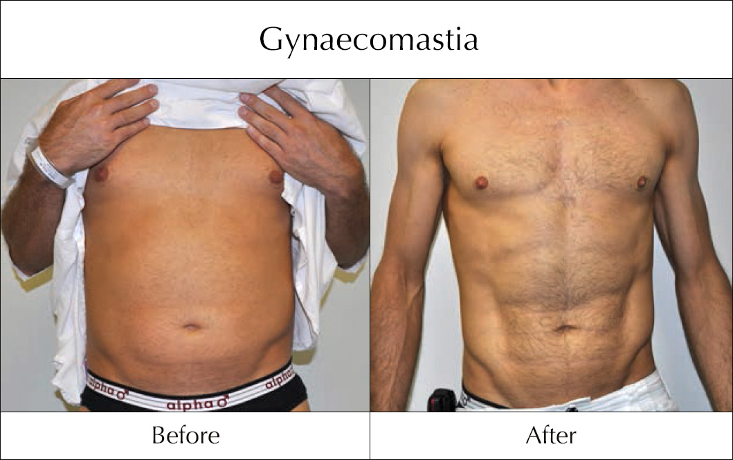 gynaecomastia-before-and-after-5