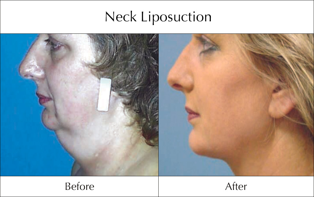 Image result for Neck Liposuction